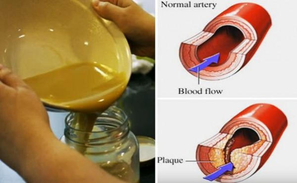 Clear Clogged Arteries and Eliminate Bad (LDL) Cholesterol From Your Bloodstream Using THIS 3 Ingredients Remedy!
